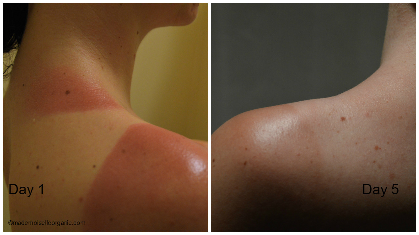 sunburn day 1 and day 5, after applying aloe vera gel and shea butter twice a day